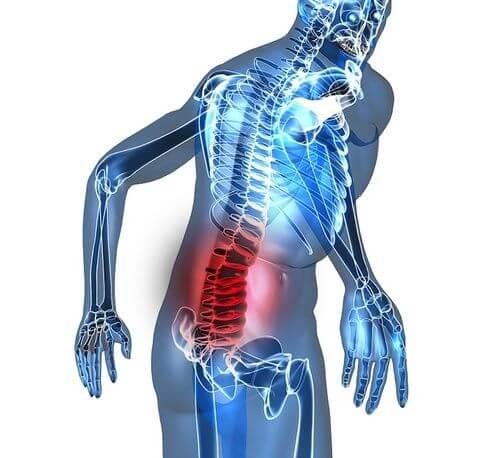 Cosa fare per alleviare il dolore alla schiena